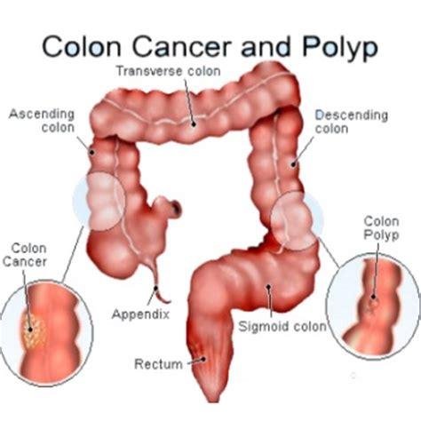 Can You Colon Cancer Without Blood In Stool by Cecp Nigeria Archives 2015 April