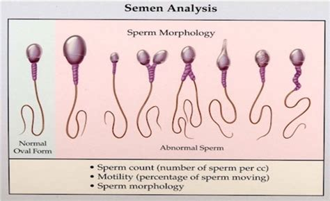 sperm of a girl will look like semen analysis uncovering male infertility causes
