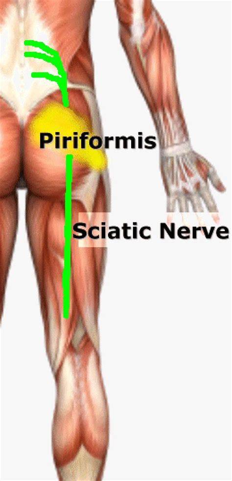 how to treat sciatica pain in leg 1093 best images about sciatica and spinal hip and leg