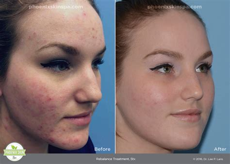 light therapy bed before and after light therapy acne before and after 28 images