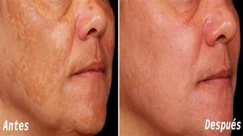 el rostro de la 3125356903 bicarbonato de sodio para exfoliar el rostro 161 te asombraran los resultados youtube