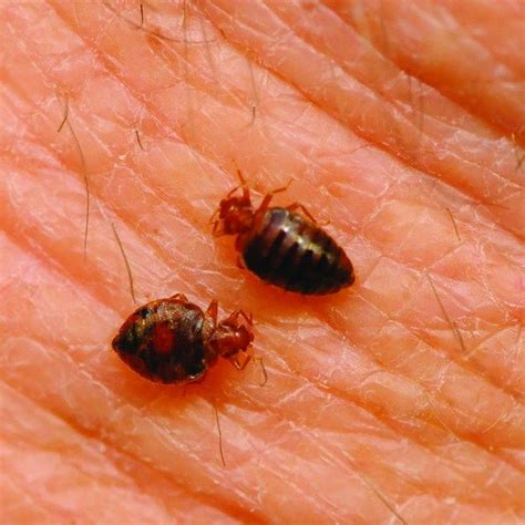 pictures of bed bugs on humans pictures of bed bugs on humans 28 images are bed bugs visible to the human eye 28