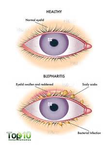itchy eyelids home remedy home remedies for blepharitis eyelid inflammation top