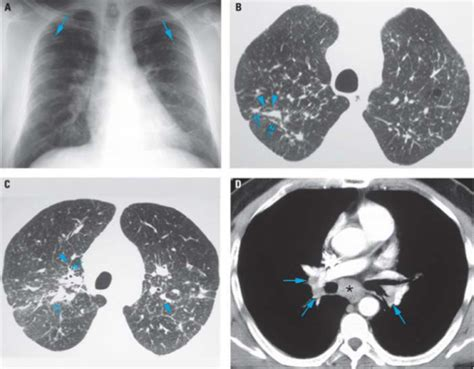 Biomars Lung chest radiograph a and hrct images b d of patient open i