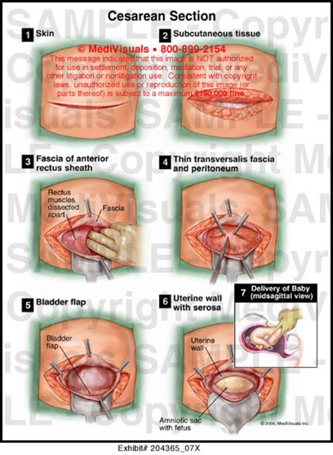 emergency c section procedure cesarean section medical illustration medivisuals