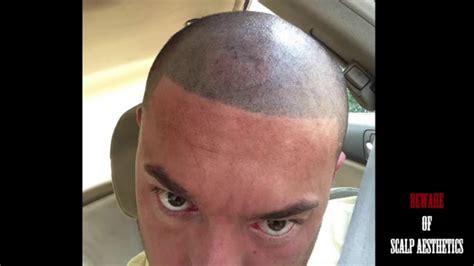 beware failed bad hair transplant smp scalp