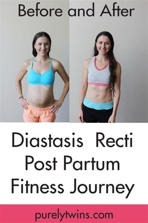 diastasis recti update post partum belly