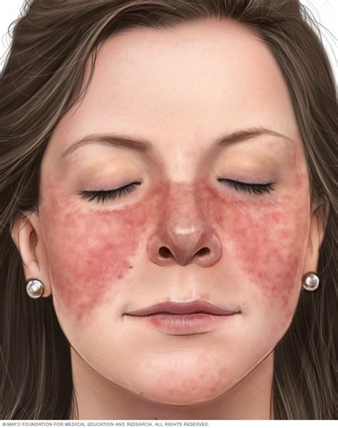 lupus symptoms and causes mayo clinic
