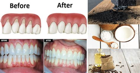 gums pulling away from teeth home remedy these 10 remedies will help grow back your