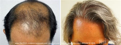 hair cloning 2015 most recent news cloning hair 2015 new style for 2016 2017