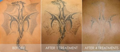 best laser tattoo removal with picosure philadelphia