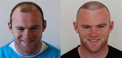 does fue hair transplant work wayne rooney s hair transplant result harley street hair