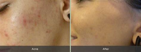 Minyak Atsiri Terkini peran pro acne anti jerawat terkini labkesehatandoc
