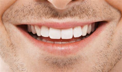 white teeth diy kits    mouth