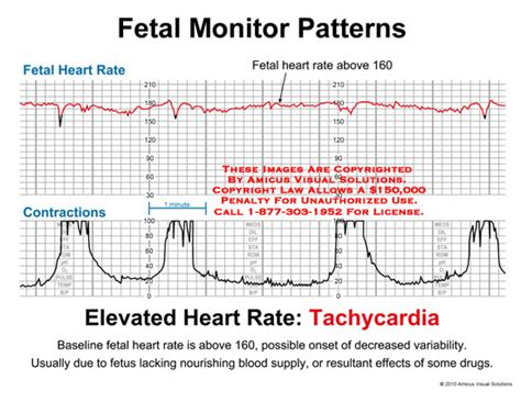 pattern heart rate fetal monitor patterns