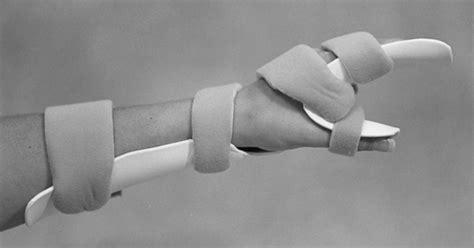 Wrist injury masturbation