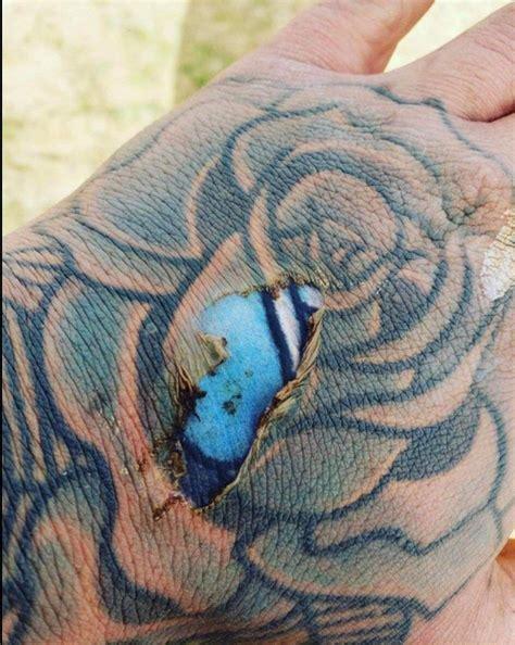 sunburn tattoo what happens when you get a burn a faded pics