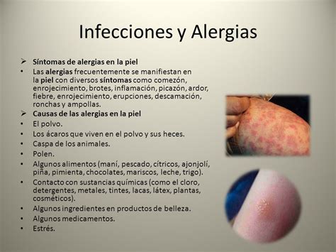 alergias a la piel sistema tegumentario a este sistema pertenece la piel que