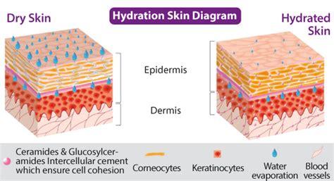 hydration vs moisture skin image gallery eczema diagram