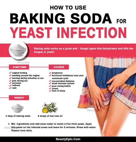 Can Yeast Infections Happen After A Detox by 5 Simple Ways To Get Rid Of Yeast Infection Fast With