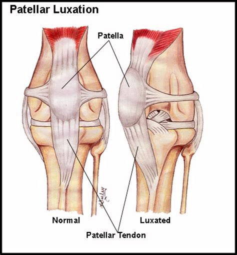 luxating patella patellar luxation a preventable problem for small dogs