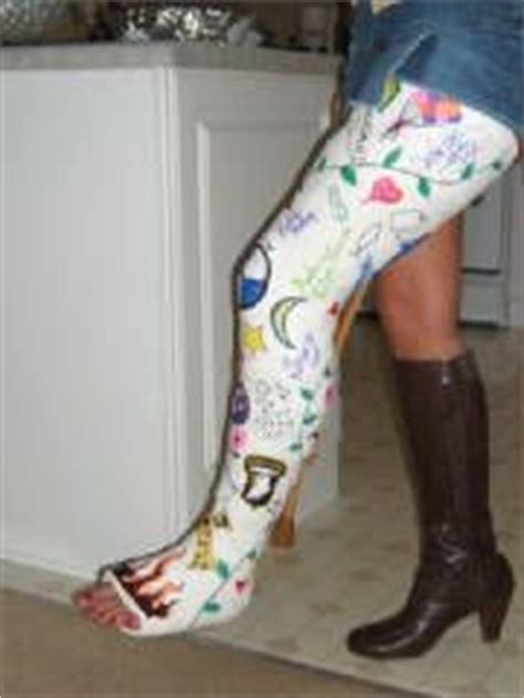 Decorate Your Cast by Cool Decorated Plaster Cast Ideas For Leg Cast