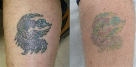 the best tattoo removal emejing removal reviews images styles