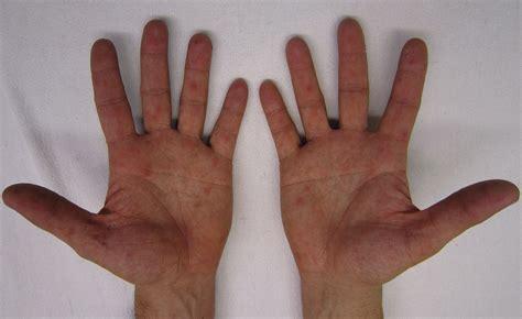 hand foot mouth disease rash original file 4 252 215 2 607 pixels file size 1 74 mb