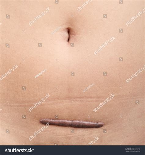 scar on human skin stock photo 97015703 scar on human skin keloid from hysterectomy stock photo 441039316