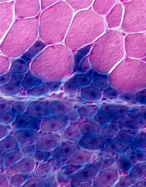 c section muscle damage stem cell surprise for tissue regeneration w podcast