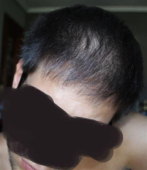Accutane Liver Detox by Term Diffuse Hair Loss After Accutane And Sebum
