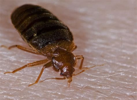 are bed bugs visible scabies vs measles what is unseen is worse than what is