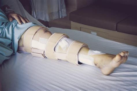 broken leg exercising with a broken leg livestrong