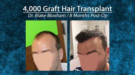 bio dr feller hair transplants new york new jersey most popular vid pics 4 000 graft hair transplant feller bloxham