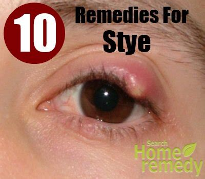 stye on eyelid breeds picture
