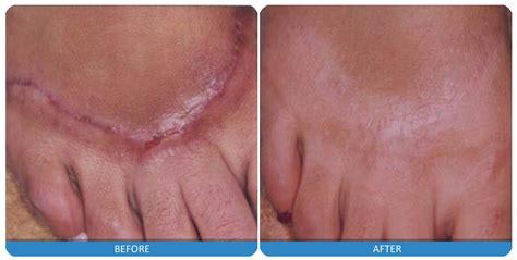 scar removal laser scar reduction laser scar removal scar treatment