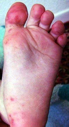 hand foot mouth disease rash medical definition of hand foot and mouth disease
