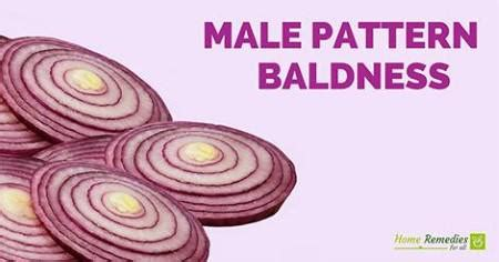 male pattern baldness name home remedies for male pattern baldness