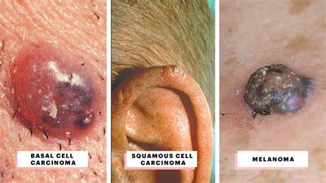 skin cancer    visual guide  warning