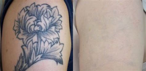 tattoo removal singapore before after laser tattoo removal