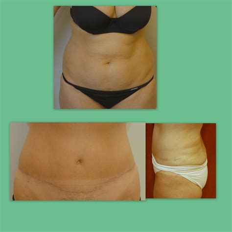 c section tummy tuck combo tummy tuck abdominoplasty david s goldberg m d