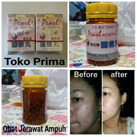 Obat Jerawat obat herbal jerawat obatherbalalam
