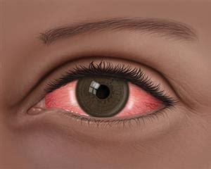 imagenes ojos con conjuntivitis conjuntivitis 191 qu 233 es el ojo rojo american academy of
