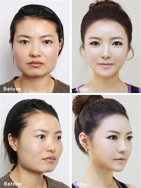 Designer Cosmetic Surgery Craze by South Korean Plastic Surgery Craze Blamed For Creating