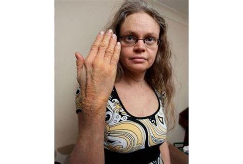 Gamis Wanita Gt 03 sang wanita kadal kulitnya bersisik dari kepala hingga