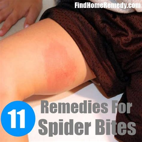11 home remedies for spider bites treatments