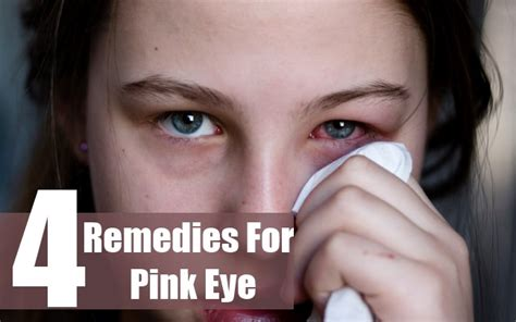 how to cure pink eye home remedy for treating pink eye