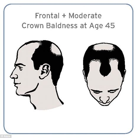 percentage of men balding men who are bald by 45 are more likely to get an