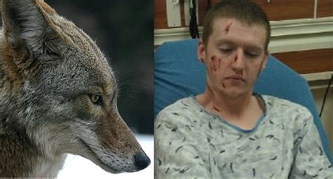 coyote attacks colorado attacked by a pack of coyotes unofficial networks