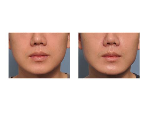 angular jaw line angular jaw images reverse search